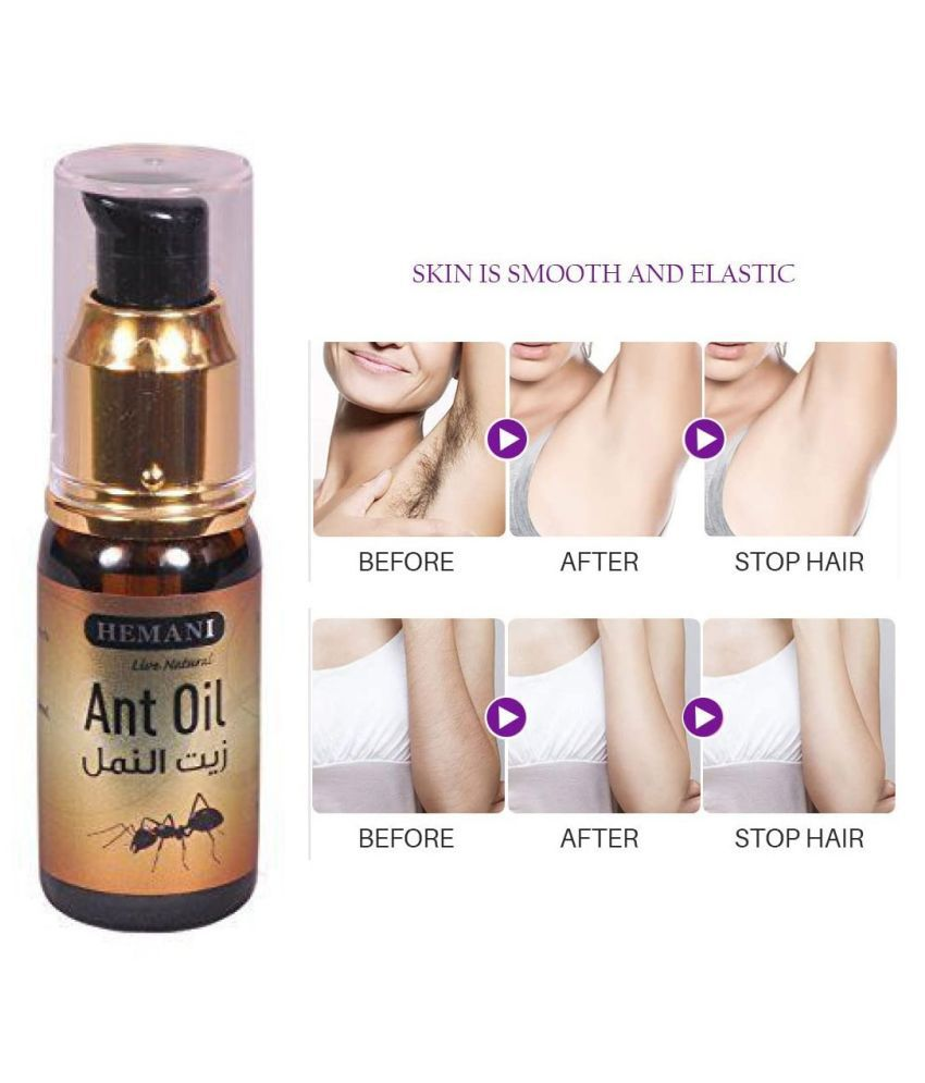 Hemani Live Natural Ant Oil Intimate Area Hair Removal Oil For Glowing Skin 30 mL