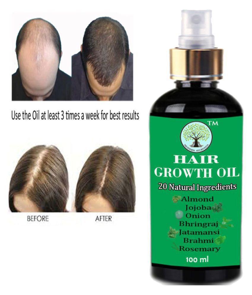 MODERN AYURVEDA Onion Hair Growth Oil- Hair Fall Control Hair Oil 100 mL